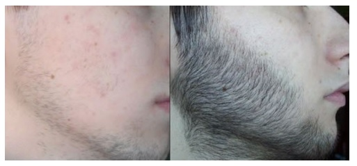 Gummy Hair For Man resultados 2