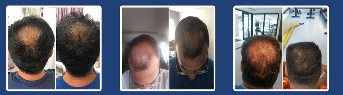 Big Hair Men resultados 01