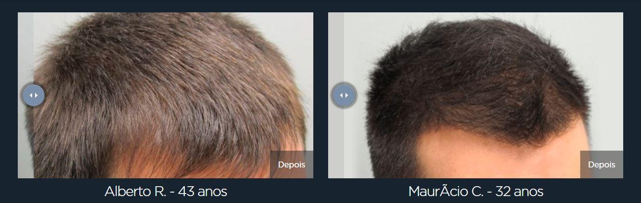 Ultra Hair Pro Max resultados 02