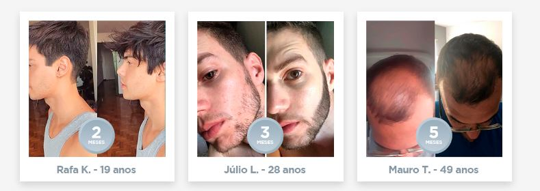 Ultra Hair Pro Max resultados 05